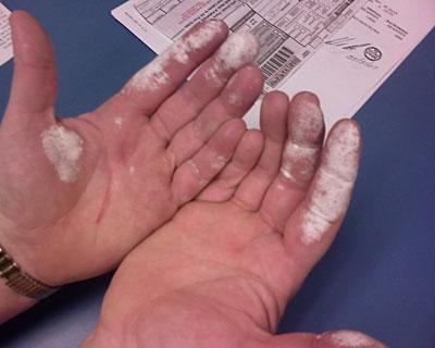 peroxide on skin #11